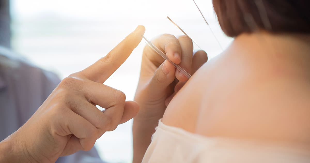 acupuncture on sitting patient