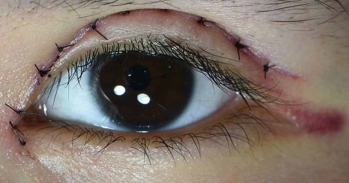 stitches on an eyelid