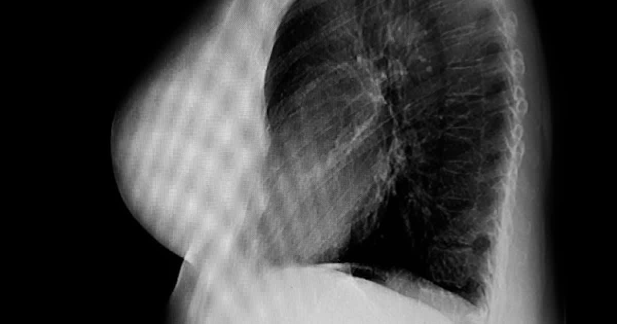 chest x ray of a womans breasts