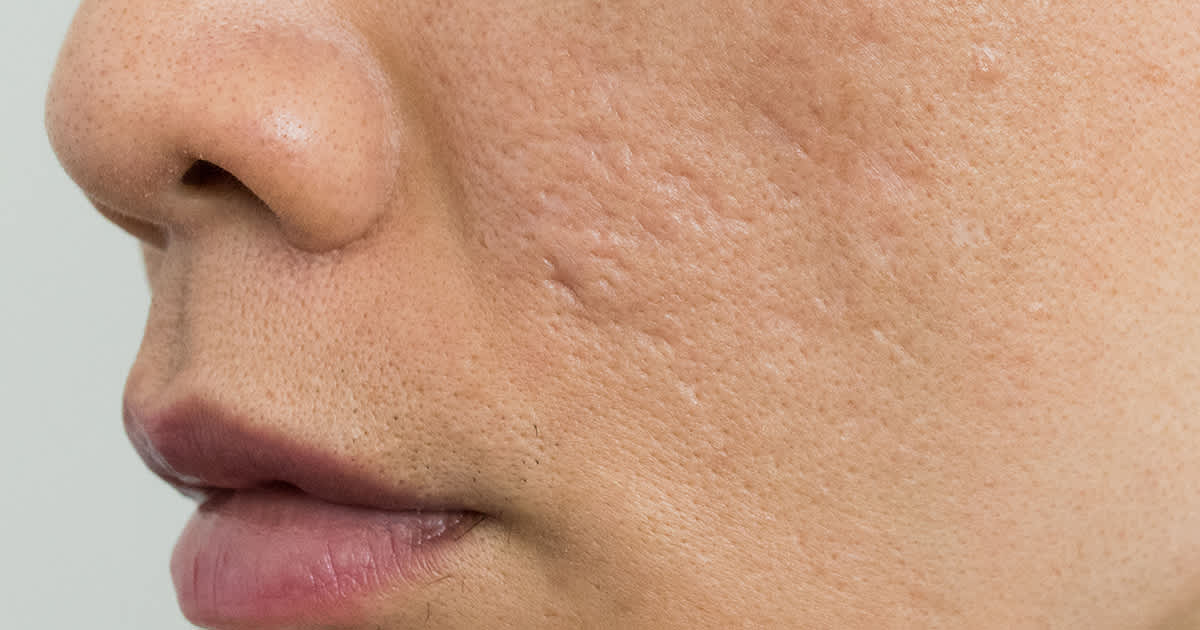 rolling acne scars on a face