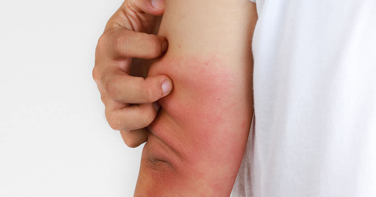 eczema on the back of an elbow