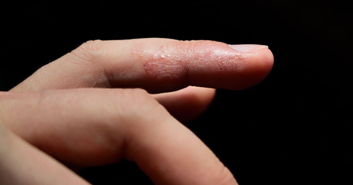 eczema on a finger