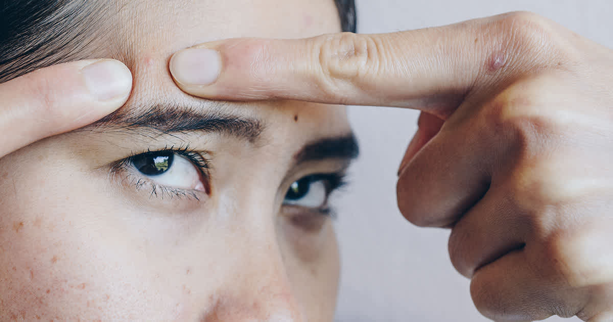 These 3 Dermal Fillers Can Work For Acne Scars: An Aesthetic Doctor Discusses undefined