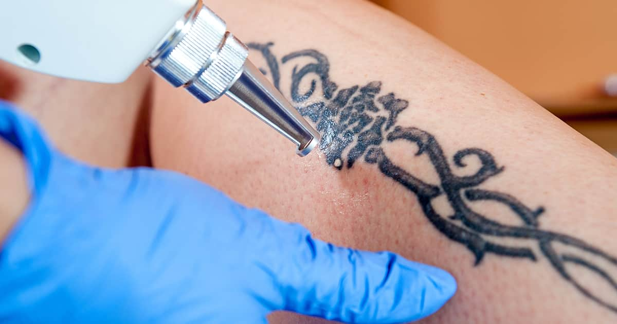 tattoo removal with a laser
