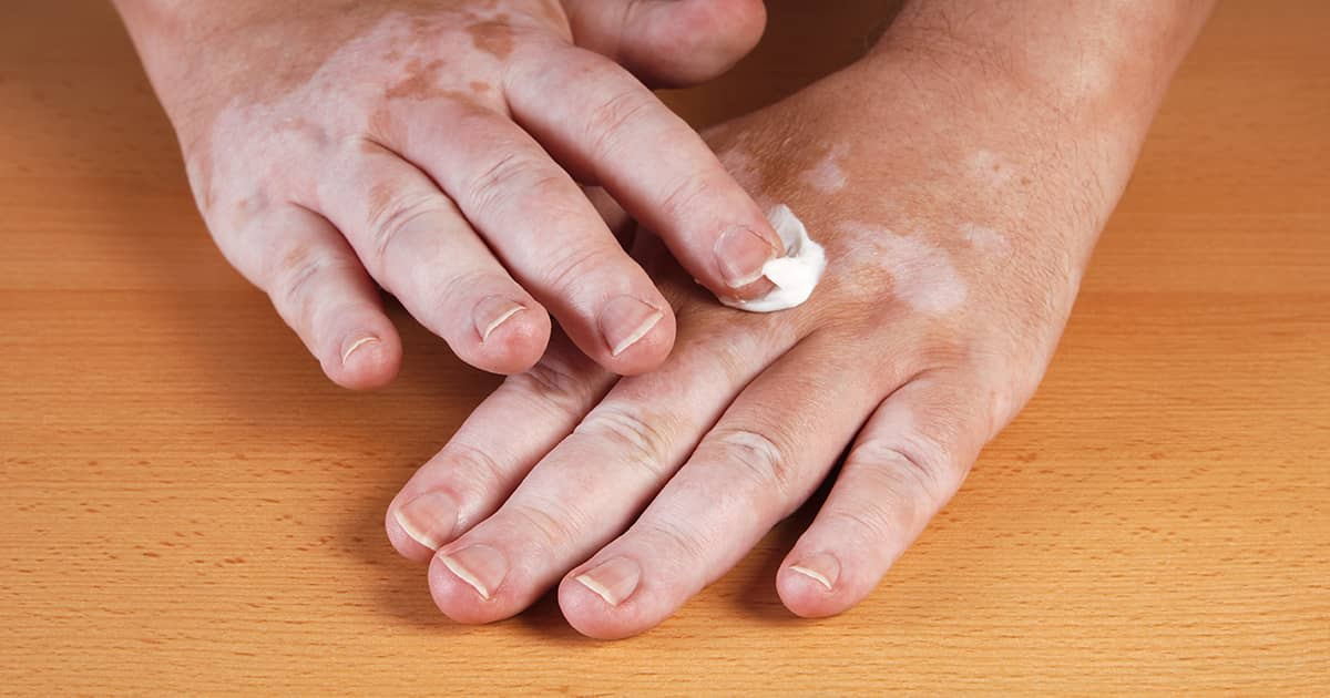 applying cream to hand vitiligo