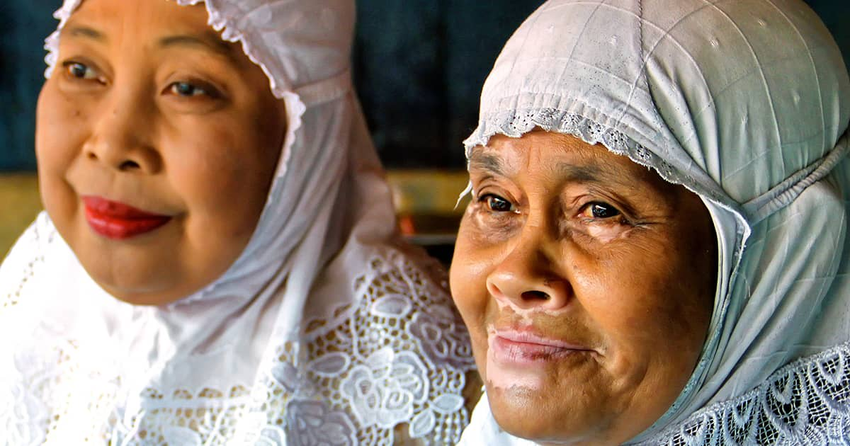 two muslim women one with vitiligo on face