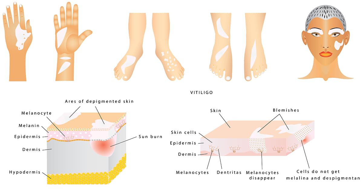 illustration of parts of body with vitiligo