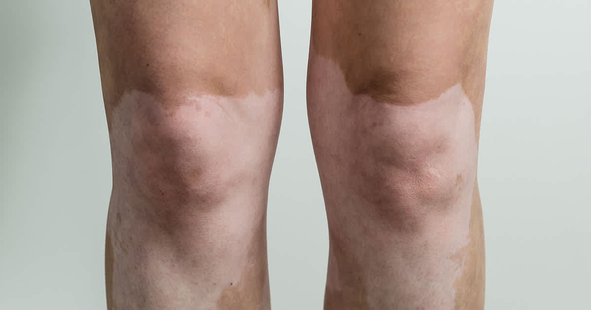 knees with vitiligo patches