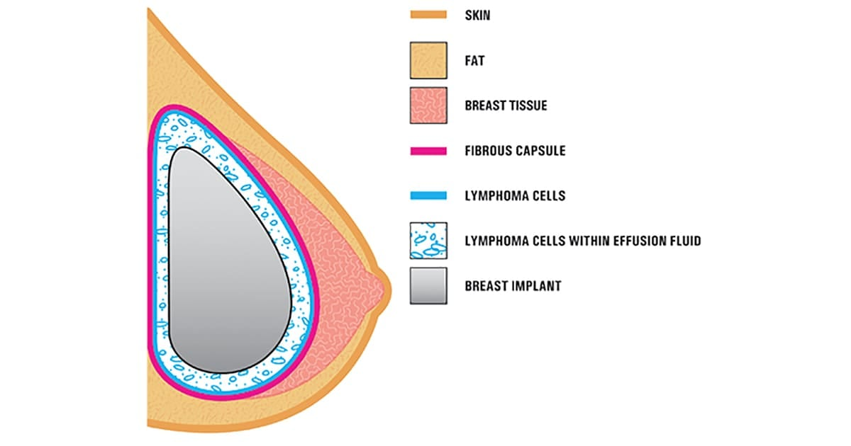 illustration of breast implant associated anaplastic large cell lymphoma