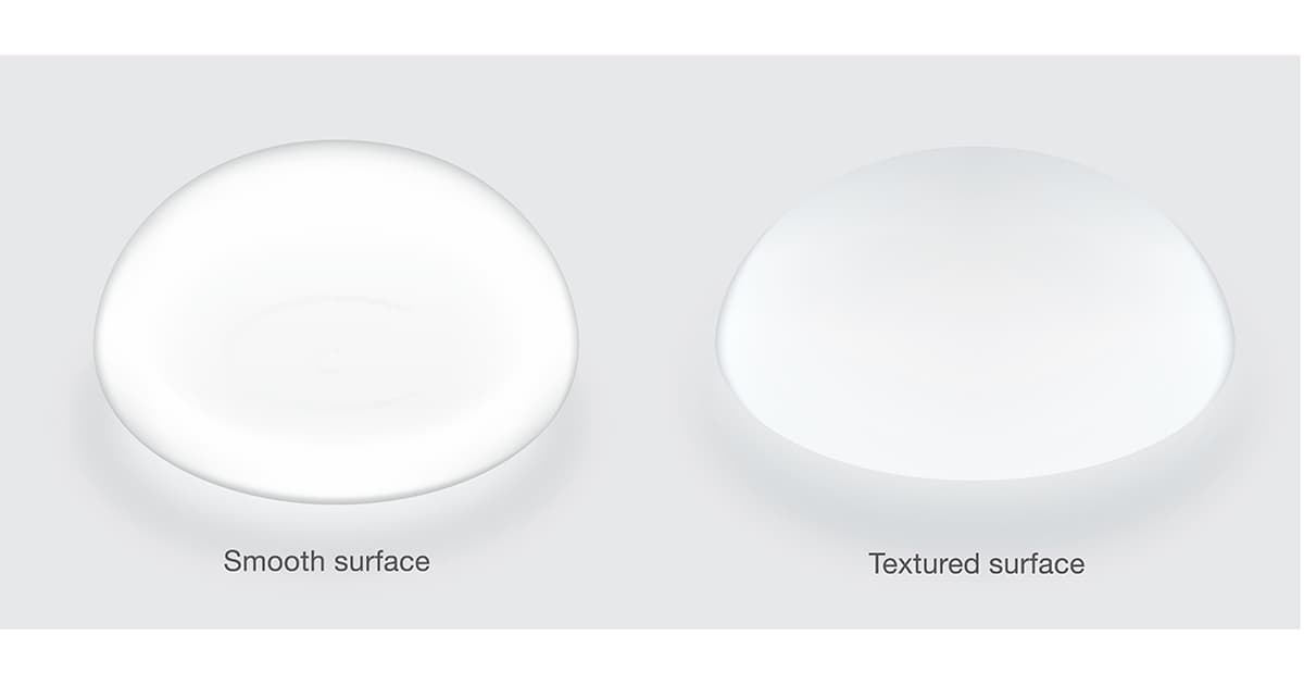 comparison of smooth and textured breast implants