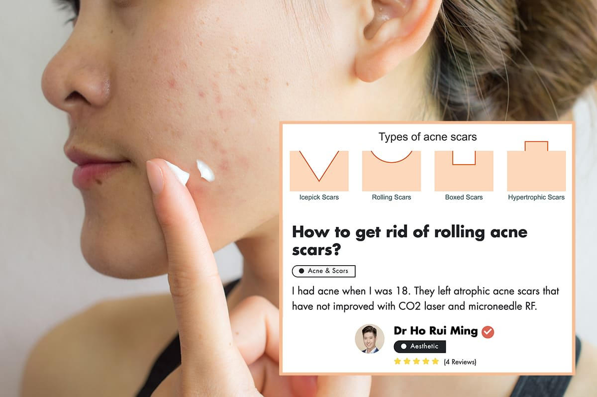 Treating Rolling Acne And Box Scars: A Doctor Shares Tips undefined