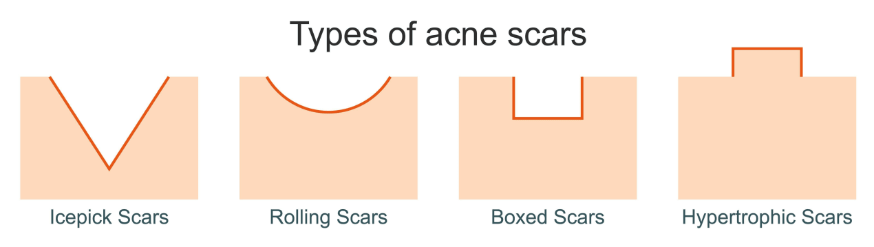 icepick scars, rolling scars, boxed scars, hypertrophic scars