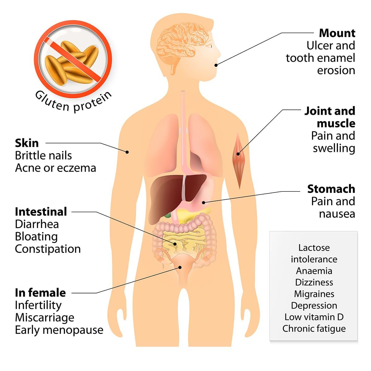 illustration on the symptoms of celiac disease on the human anatomy