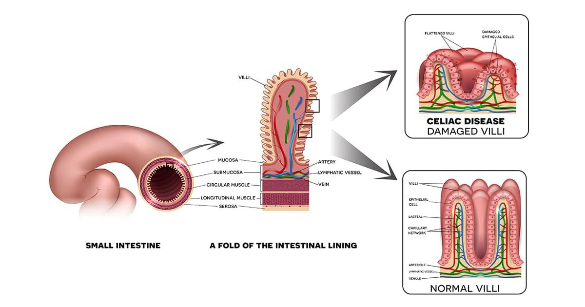 illustration of a small intestine and villi