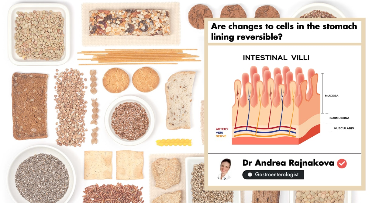 This Gastroenterologist Shares Insights On Managing Celiac Disease undefined