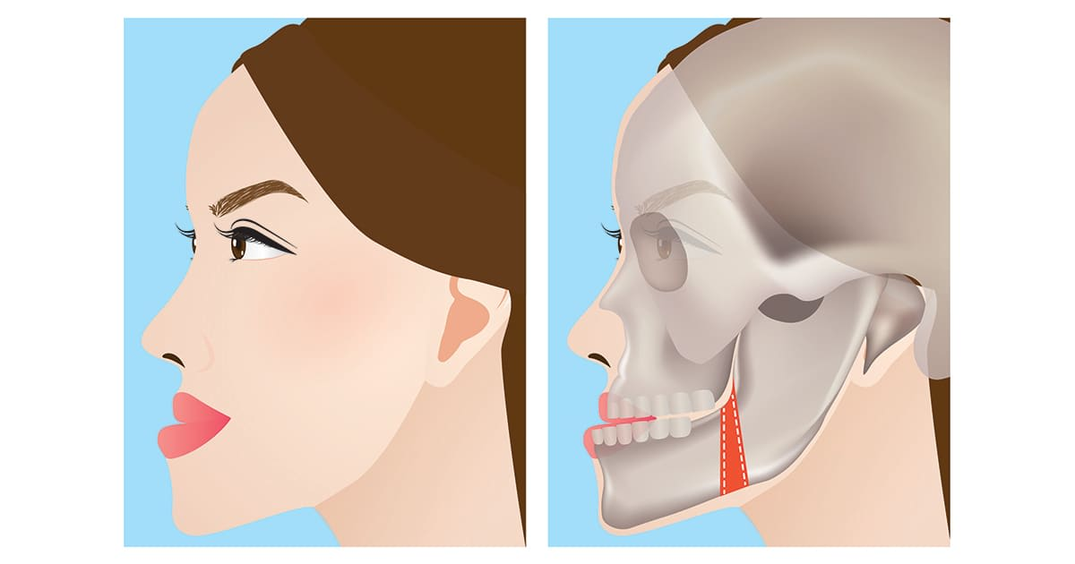 illustration of a jaw protrusion and incision point for jaw surgery