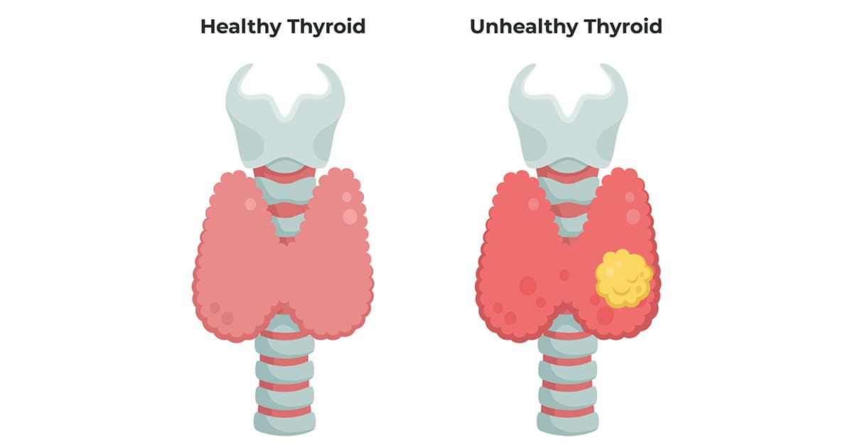 illustration of a healthy and unhealthy thyroid