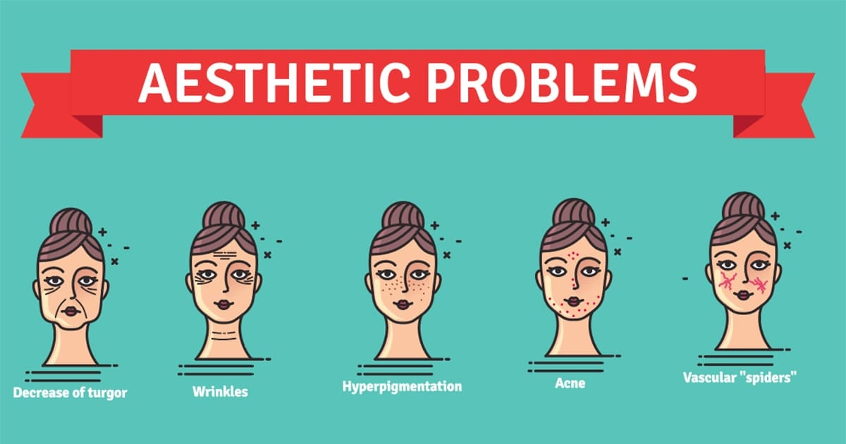 illustration of aesthetic problems for laser treatment