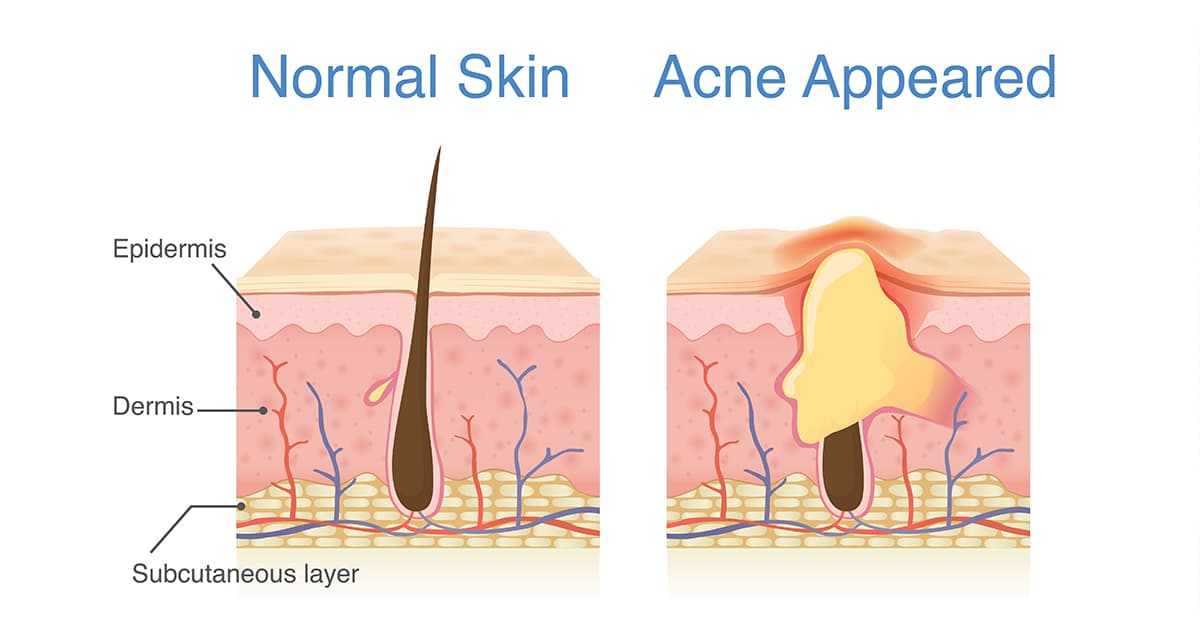 illustration of normal and acne-skin