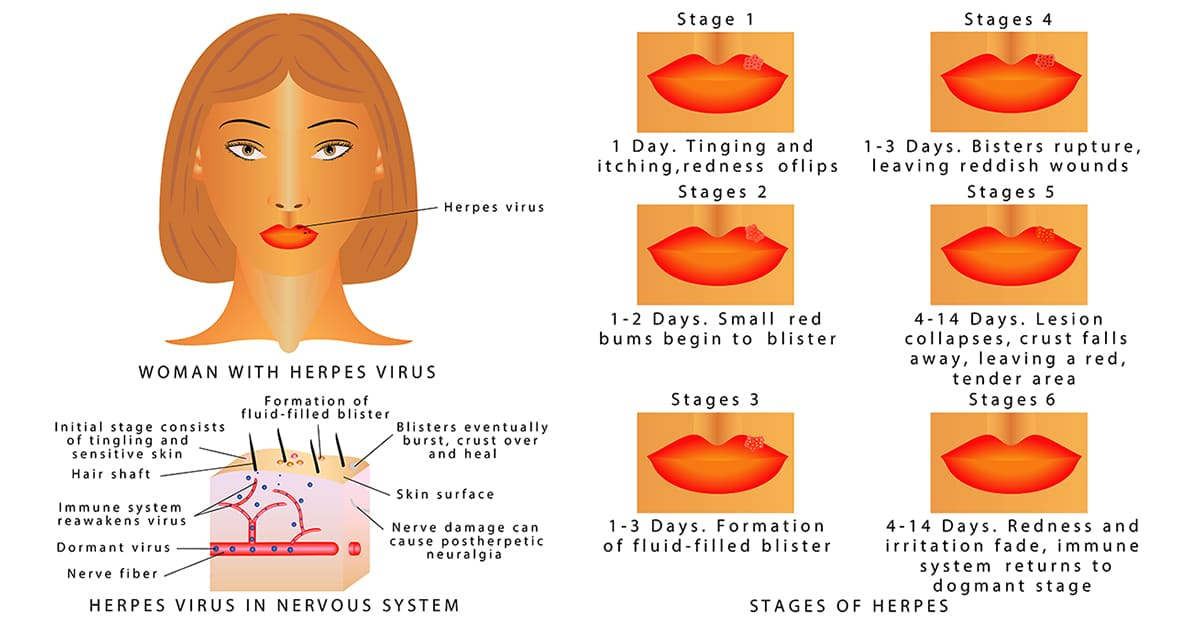 illustration and explanation of stages of herpes virus
