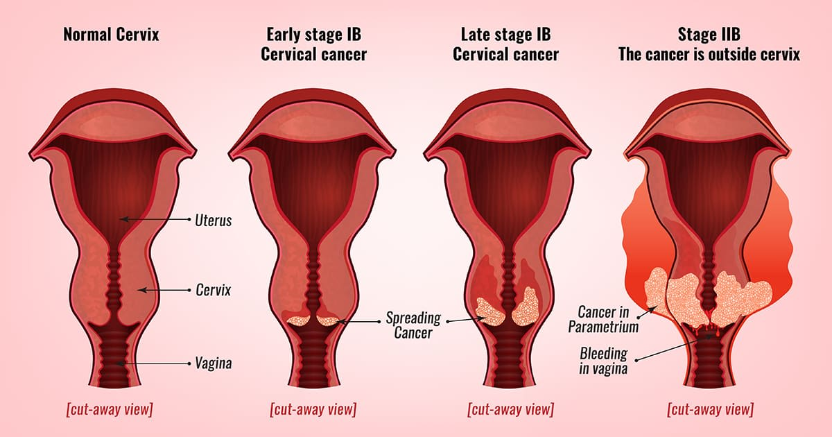 diagram of cervix cancer in various stages