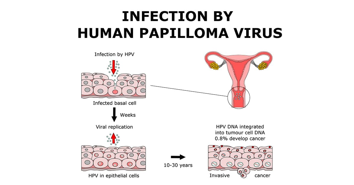 illustration of infection by hpv