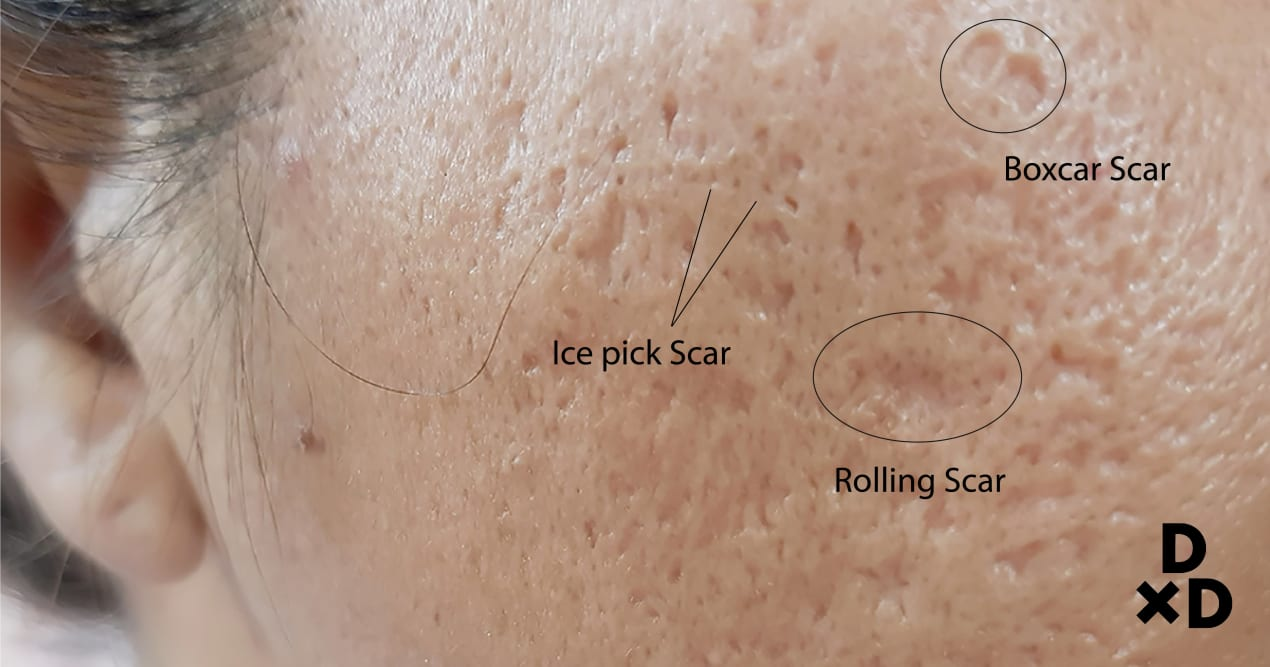 image of the three categories of acne scars