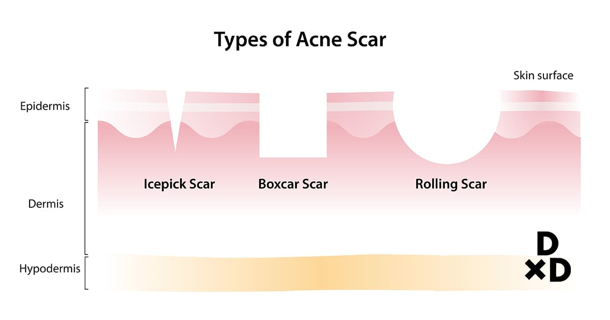 illustration of types of acne scars