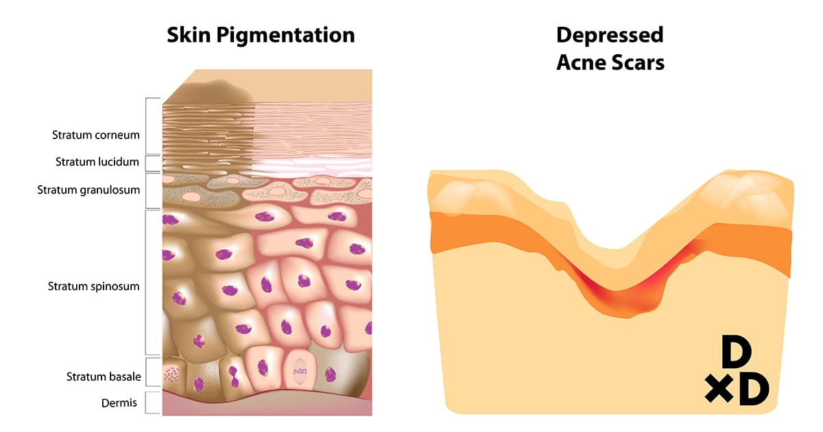 illustration of differences between pigmentation and acne scars