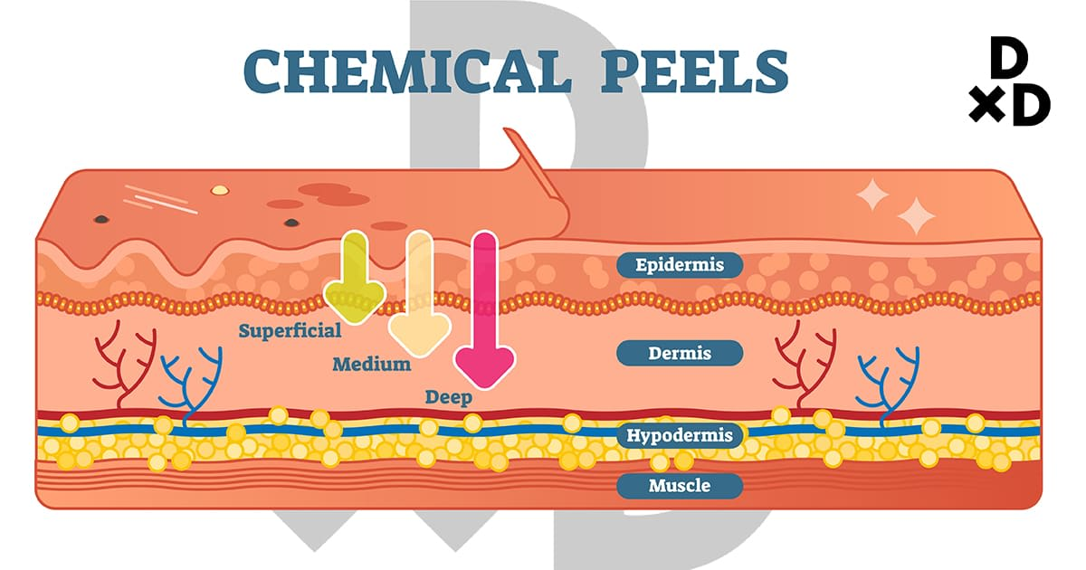 chemical peels with skin structure