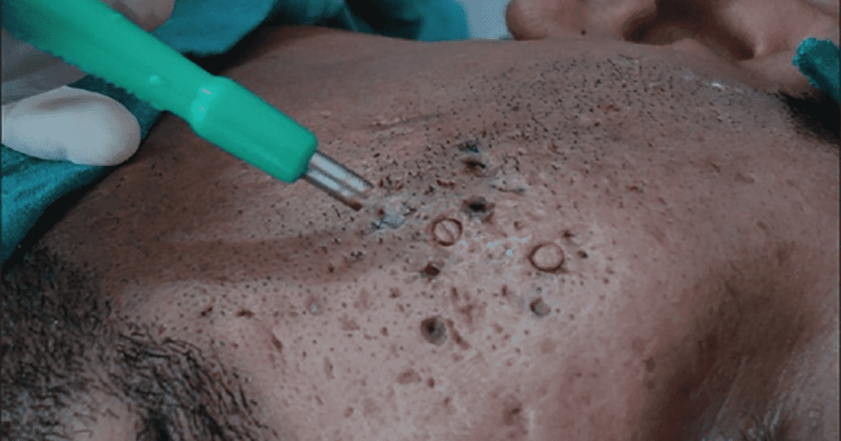 punch excision procedure on male patient
