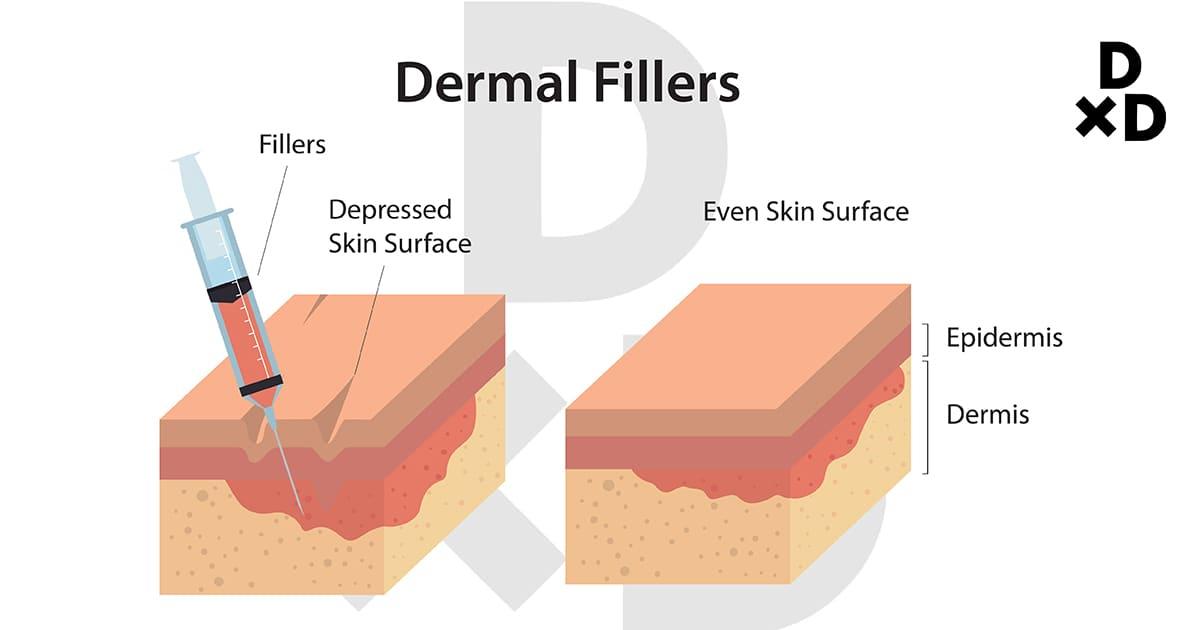 illustration of dermal fillers on skin structure