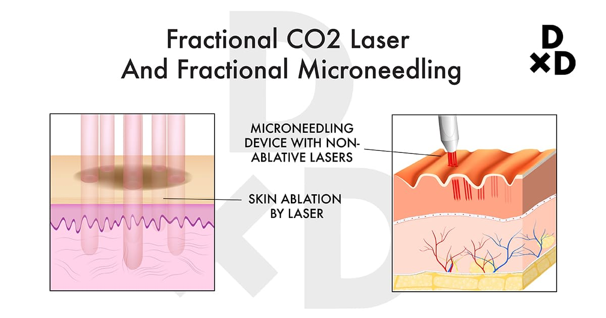 illustration on fractional co2 laser and microneedling