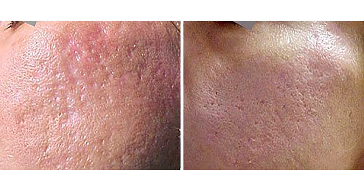 improvements after an acne scar treatment