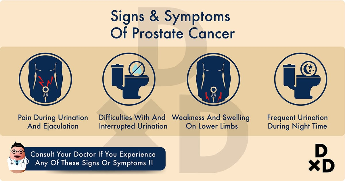 illustration on the signs and symptoms of prostate cancer