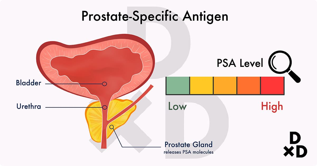 illustration of psa test