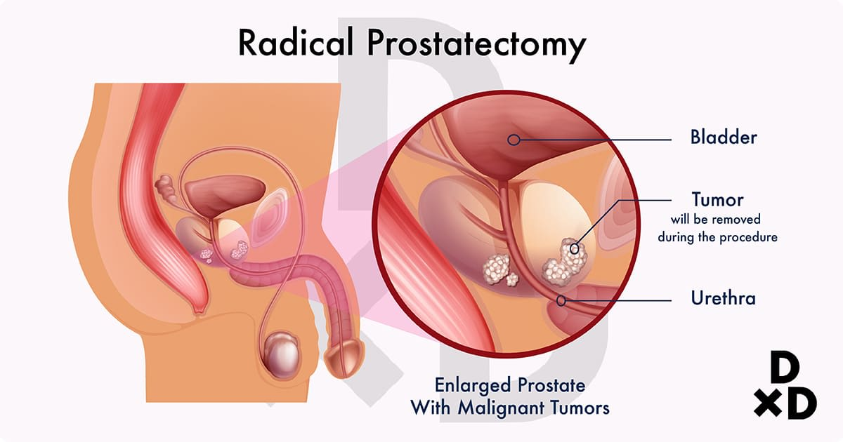 illustration of radical prostatectomy on enlarged prostate with malignant tumors