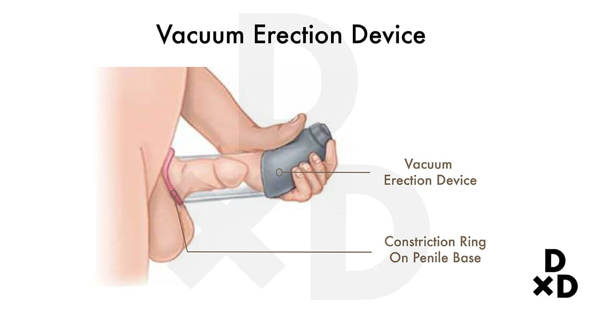 illustration of vacuum erection device