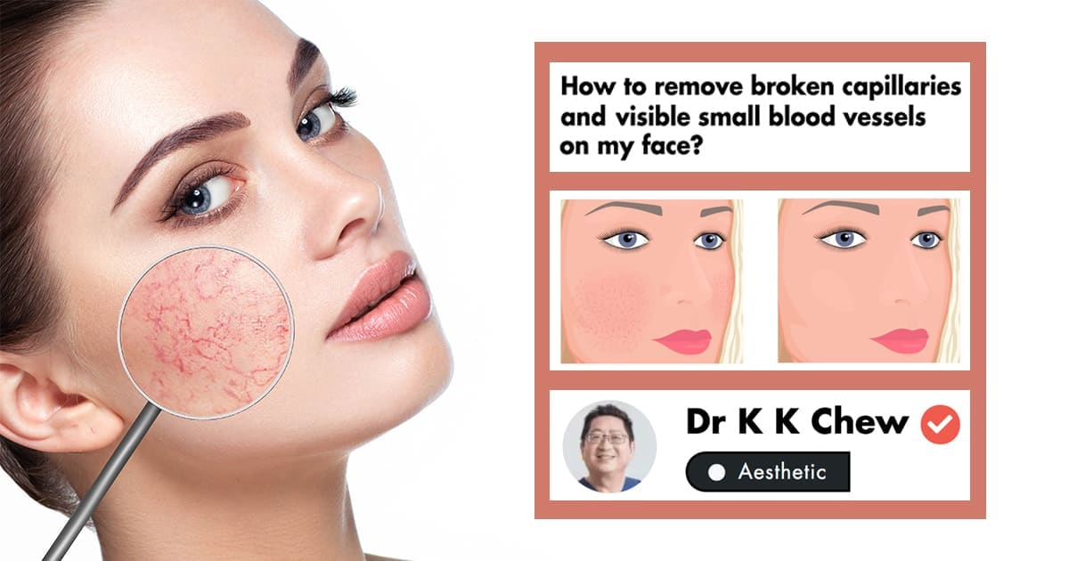 Broken Blood Vessels On The Face: A Medical Doctor's Tips On Their Management undefined