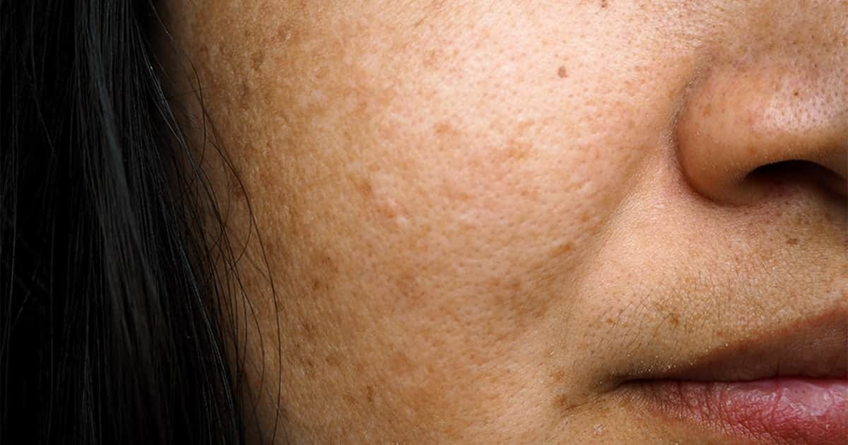 female-melasma