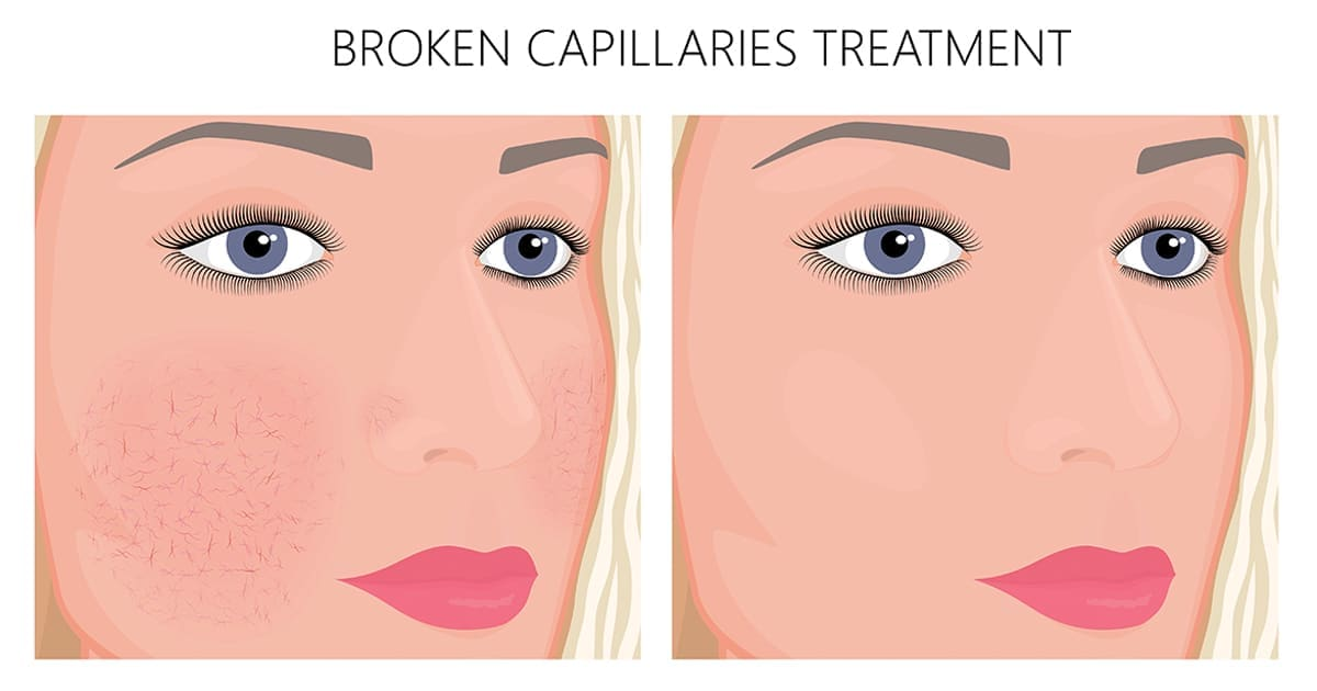 illustration-capillaries-broken-before-after