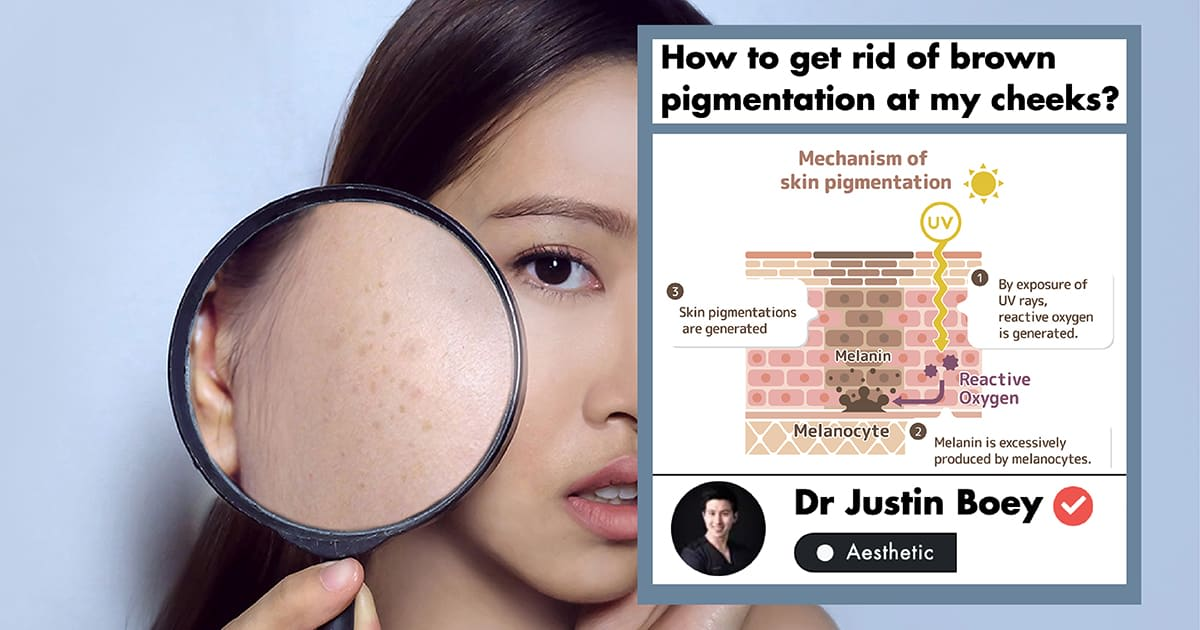 A Doctor's Guide To Pigmentation Treatment In Singapore (2019) undefined