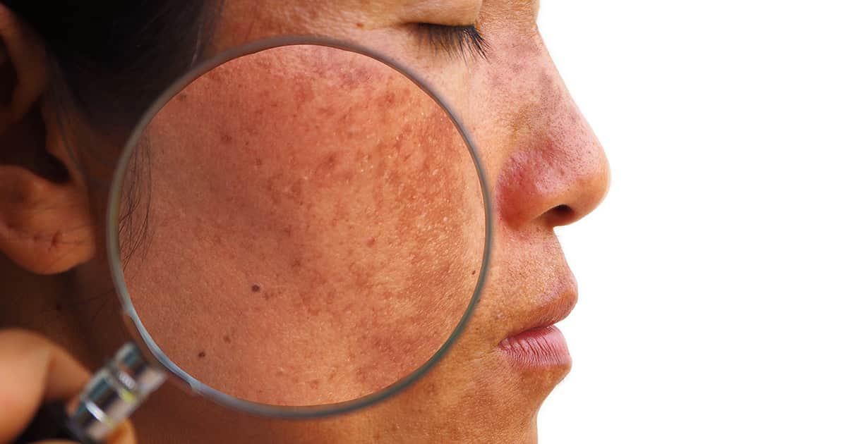 asian woman with magnifying glass on melasma skin