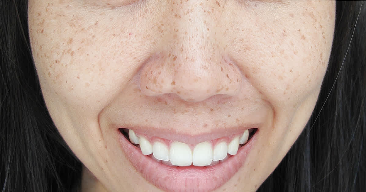 asian woman with freckles on cheeks and nose