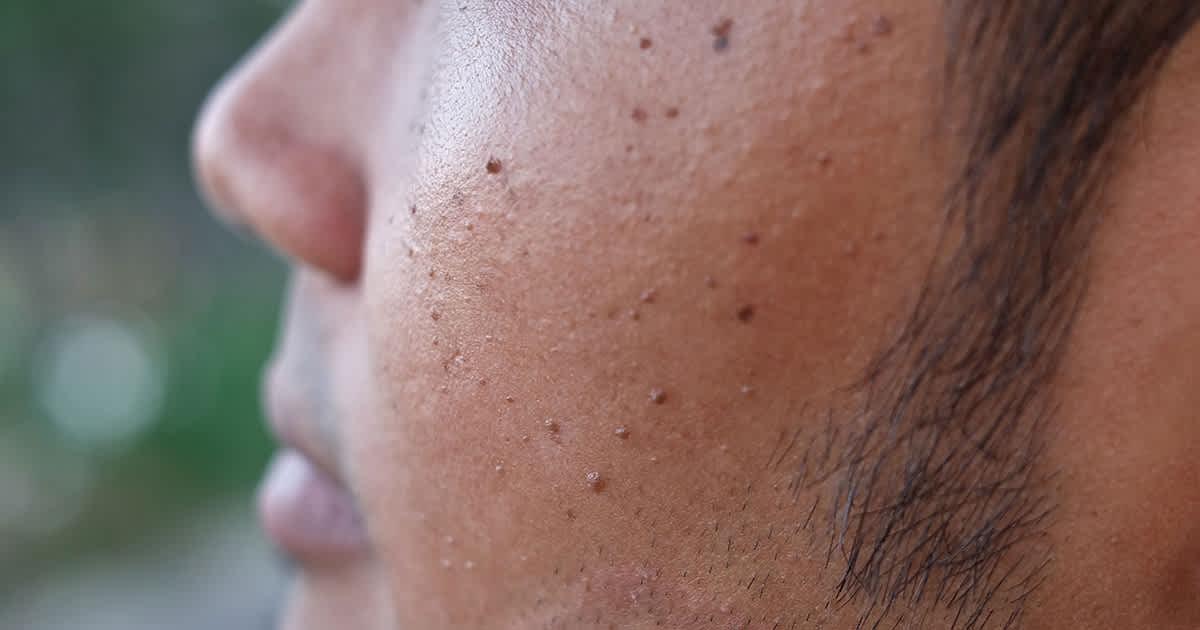 pigmentation bumps on asian man