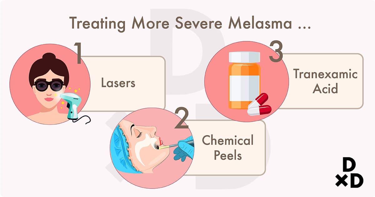 illustration on treatment types for more severe melasma
