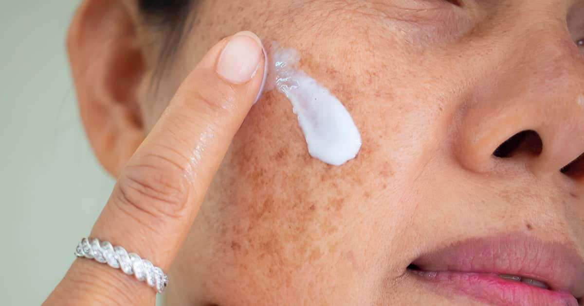 asian woman applying cream on pigmented skin
