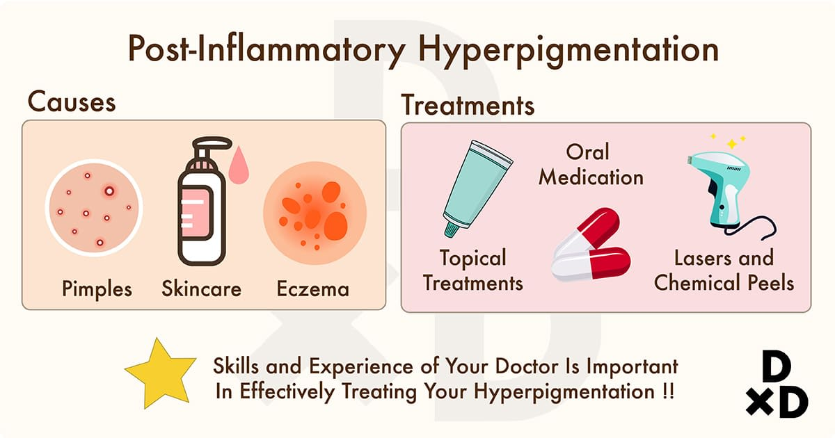 causes and treatment of post inflammatory hyperpigmentation
