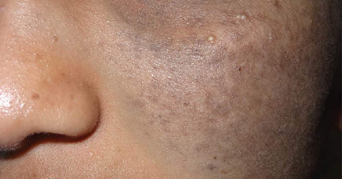 closeup on blue patches of discolouration on the cheeks of an indian woman