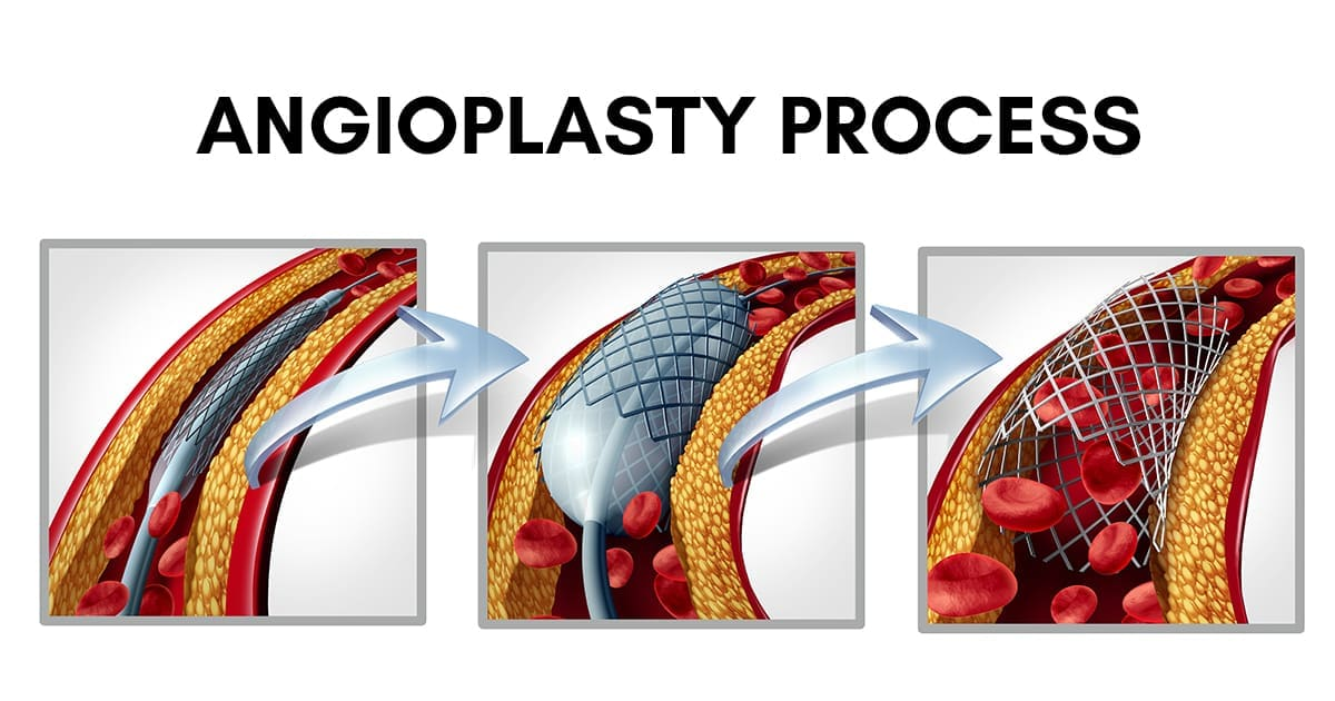 coronary-angioplasty-process-illustration